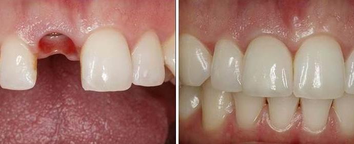 Implantes Dentales Madrid 2