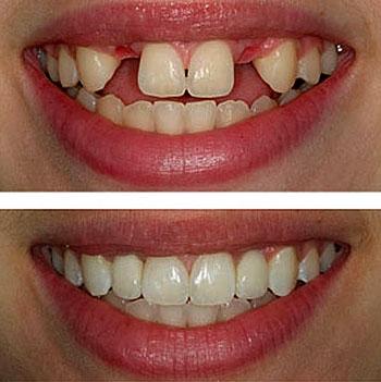 Implantes Dentales Madrid 1