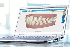 Ortodoncia Invisalign Madrid 4