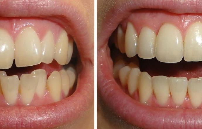 Ortodoncia Invisalign Madrid 2