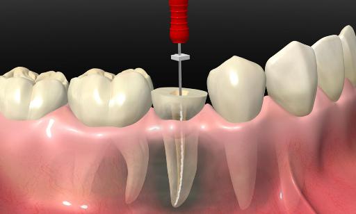 Endodoncia 2