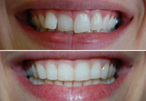 Ortodoncia Invisalign Madrid 1