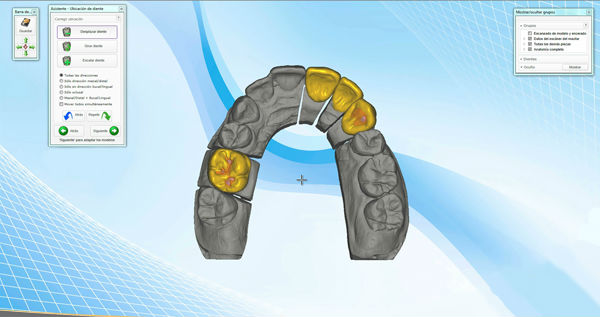 Aplicación del Escáner e Impresoras 3D a la Odontología Moderna